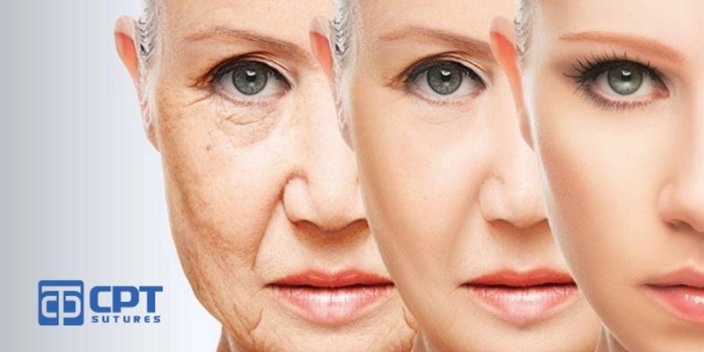 Lợi ích của căng da mặt bằng chỉ