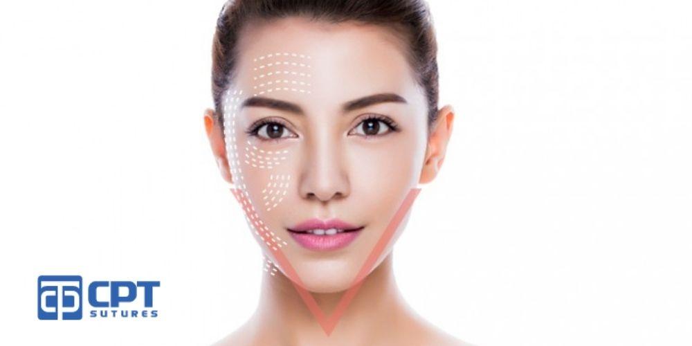 Lưu ý và chăm sóc sau khi căng da mặt